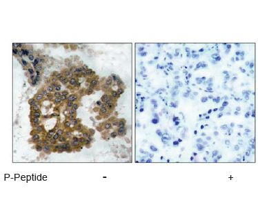 AKT2 Antibody (OASC00072) in human brain carcinoma cells using Immunohistochemistry