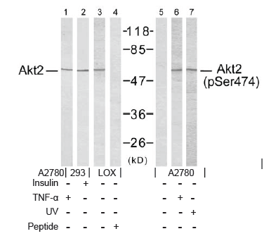 AKT2 Antibody (OASC00072) in  cells using Western Blot