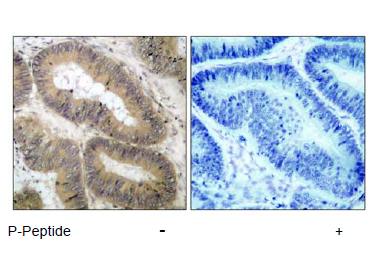 CHUK Antibody (OASC00073) in human brain carcinoma cells using Immunohistochemistry