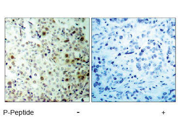 CDK2 Antibody (OASC00074) in human brain carcinoma cells using Immunohistochemistry