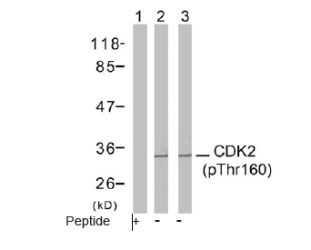 CDK2 Antibody (OASC00074) in A2780 cells using Western Blot