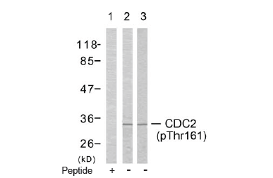 CDK1 Antibody (OASC00075) in COLO205 cells using Western Blot