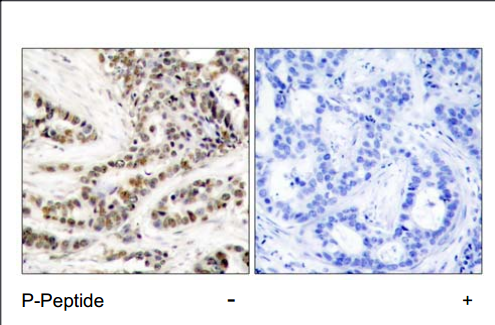 CREB1 Antibody (OASC00141) in human brain carcinoma cells using Immunohistochemistry
