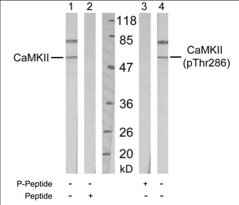 CAMK2A Antibody (OASC00146) in Mouse Brain cells using Western Blot