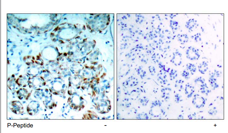 BCL2L11 Antibody (OASC00147) in human brain carcinoma cells using Immunohistochemistry