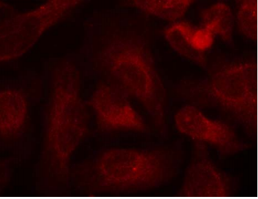 ABL1 Antibody (OASC00168) in Hela cells using Immunofluorescence