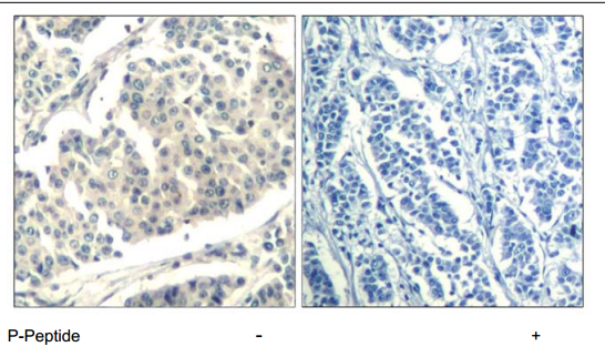 ABL1 Antibody (OASC00168) in human brain carcinoma cells using Immunohistochemistry