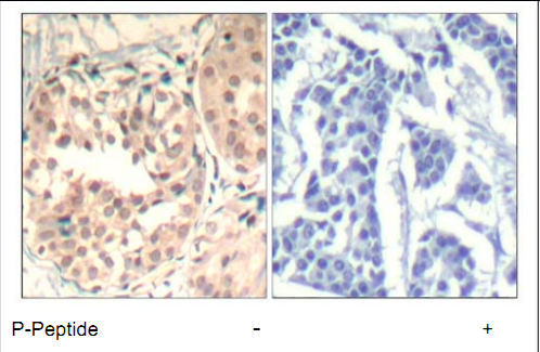 CDK6 Antibody (OASC00170) in human brain carcinoma cells using Immunohistochemistry