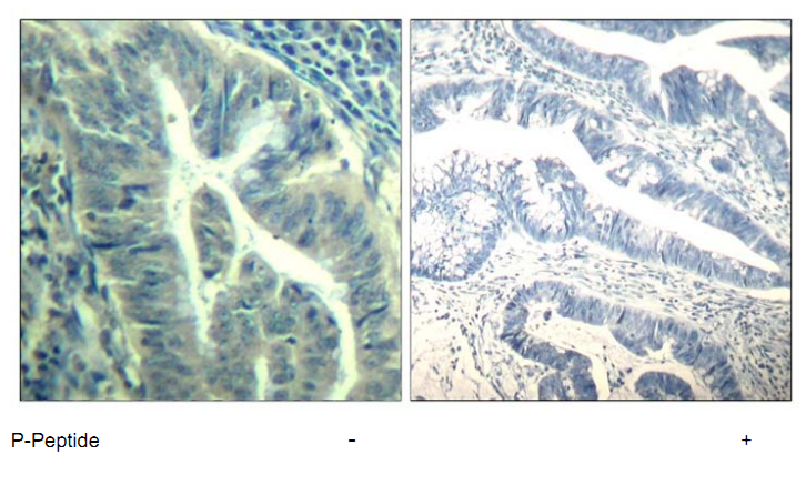 CDK6 Antibody (OASC00171) in human colon carcinoma cells using Immunohistochemistry