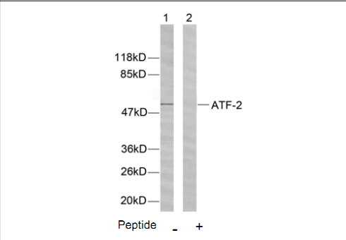 ATF2 Antibody (OASC00201) in Hela cells using Western Blot
