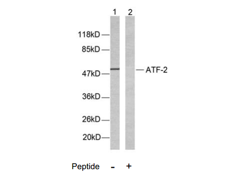 ATF2 Antibody (OASC00202) in LOVO cells using Western Blot