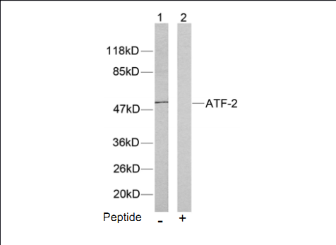 ATF2 Antibody (OASC00203) in LOVO cells using Western Blot