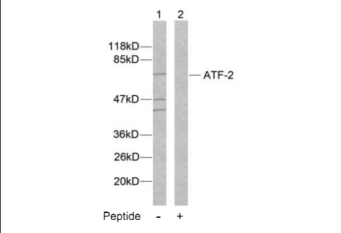 ATF2 Antibody (OASC00205) in MDA-MB-435S cells using Western Blot