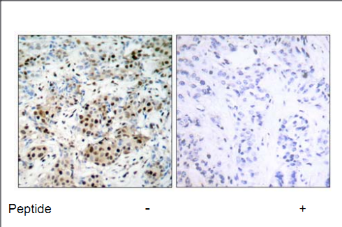CREB1 Antibody (OASC00215) in human brain carcinoma cells using Immunohistochemistry