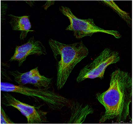 BCL2 Antibody (OASC00220) in Hela cells using Immunofluorescence