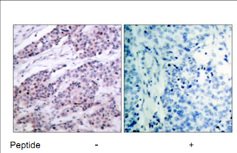 BCL2 Antibody (OASC00220) in human brain carcinoma cells using Immunohistochemistry