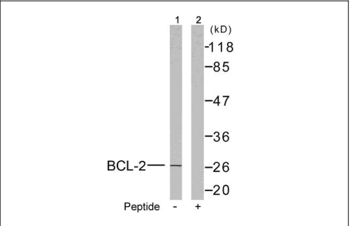 BCL2 Antibody (OASC00220) in MCF-7 cells using Western Blot