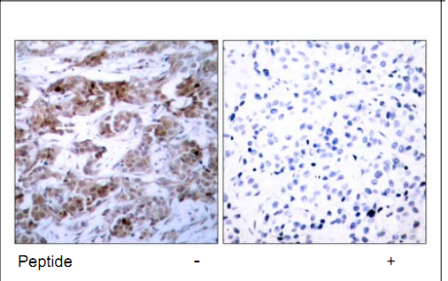 BCL2 Antibody (OASC00221) in human brain carcinoma cells using Immunohistochemistry