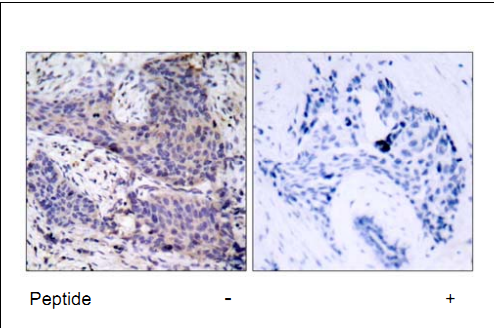 Bad Antibody (OASC00224) in human brain carcinoma cells using Immunohistochemistry