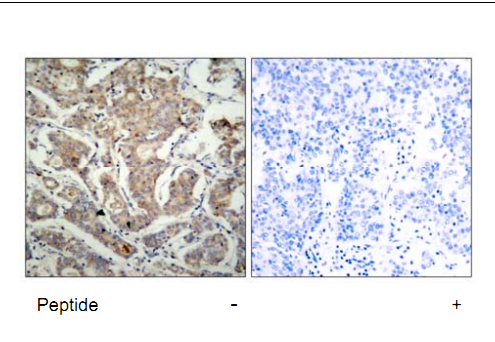 Bad Antibody (OASC00225) in human brain carcinoma cells using Immunohistochemistry