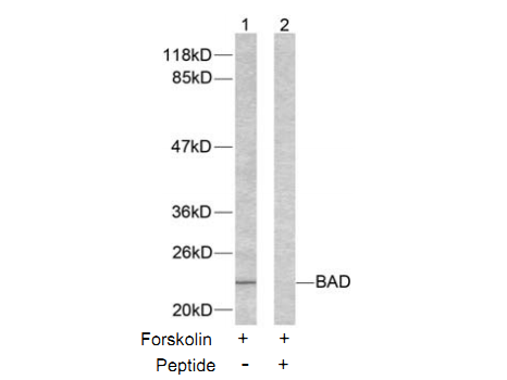 Bad Antibody (OASC00225) in 293T cells using Western Blot