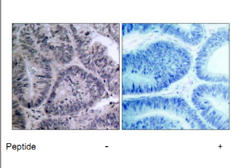 CHUK Antibody (OASC00257) in human brain carcinoma cells using Immunohistochemistry