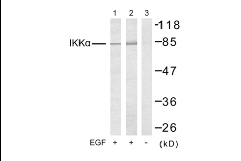 CHUK Antibody (OASC00257) in 293T cells using Western Blot