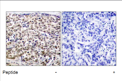 CREB1 Antibody (OASC00332) in human brain carcinoma cells using Immunohistochemistry