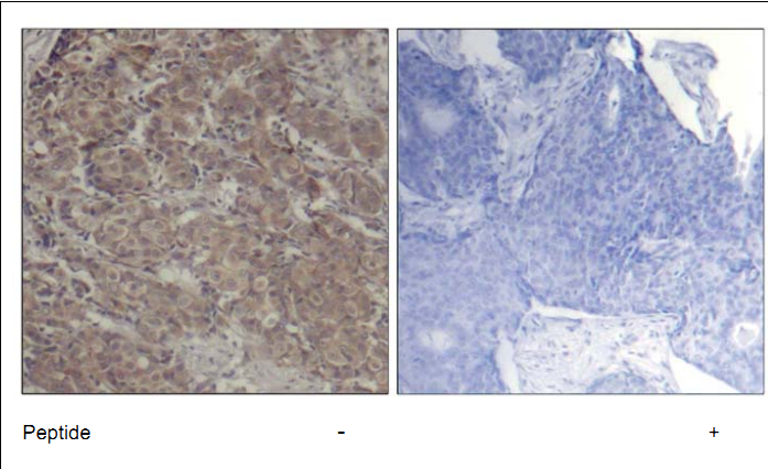CREB1 Antibody (OASC00349) in human brain carcinoma cells using Immunohistochemistry