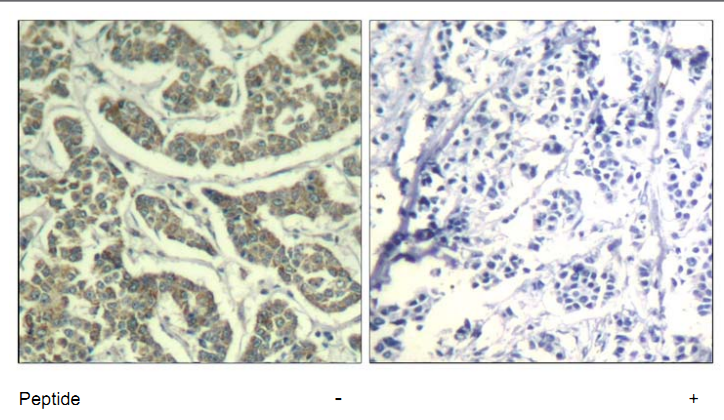 ATR Antibody (OASC00360) in human brain carcinoma cells using Immunohistochemistry