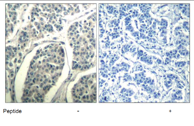ABL1 Antibody (OASC00365) in human brain carcinoma cells using Immunohistochemistry