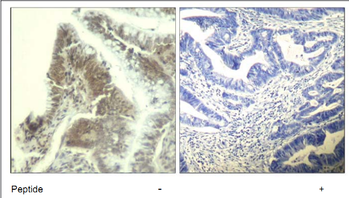 CDK6 Antibody (OASC00367) in human colon carcinoma cells using Immunohistochemistry