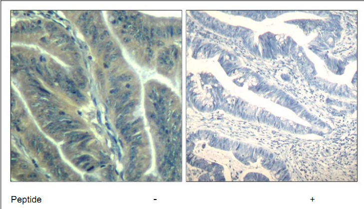 CDK6 Antibody (OASC00368) in human colon carcinoma cells using Immunohistochemistry