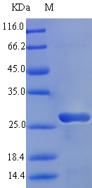 albA Recombinant Protein (OPCA03406) in SDS-PAGE Electrophoresis