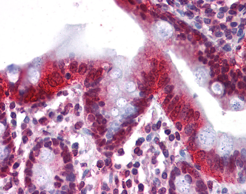 HNF4A antibody - middle region (ARP32632_P050) in Human Small Intestine cells using Immunohistochemistry