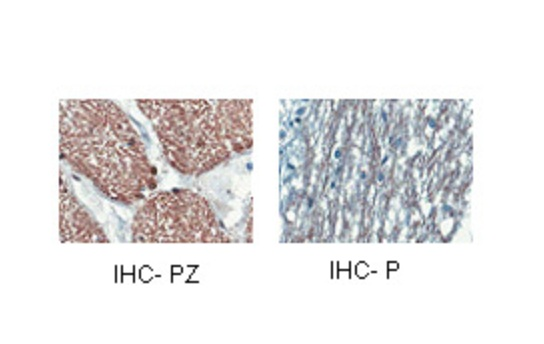 CNP antibody - middle region (ARP33879_P050) in Human cells using Immunohistochemistry
