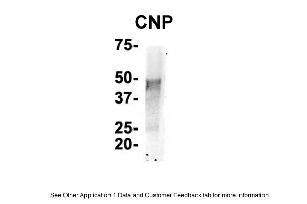 CNP antibody - N-terminal region (ARP33880_T100) in Mouse Brain cells using Immunoprecipitation
