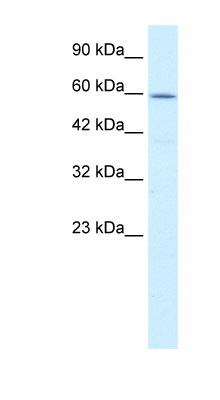 CCT4 antibody - C-terminal region (ARP34271_T100) in Human HepG2 cells using Western Blot