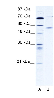 CCT4 antibody - C-terminal region (ARP34271_P050) in Human 293T cells using Western Blot