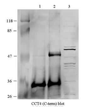 CCT4 antibody - C-terminal region (ARP34271_P050) in Human HEK293 cells using Western Blot