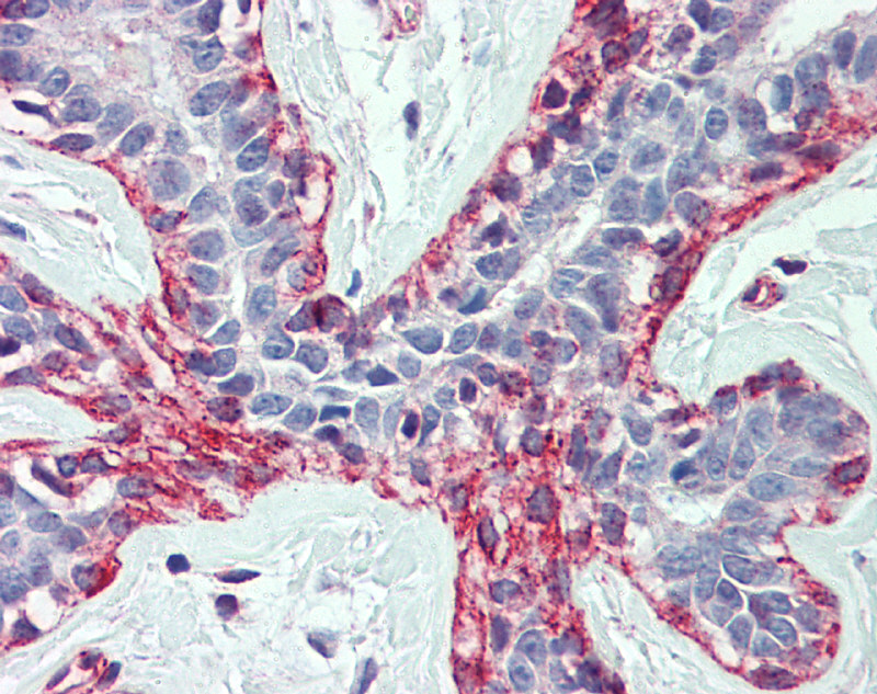 ACTB Antibody - middle region (ARP40174_P050) in Human Breast cells using Immunohistochemistry