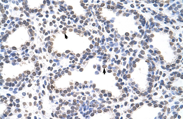 CARS antibody - C-terminal region (ARP40295_P050) in Human Lung cells using Immunohistochemistry