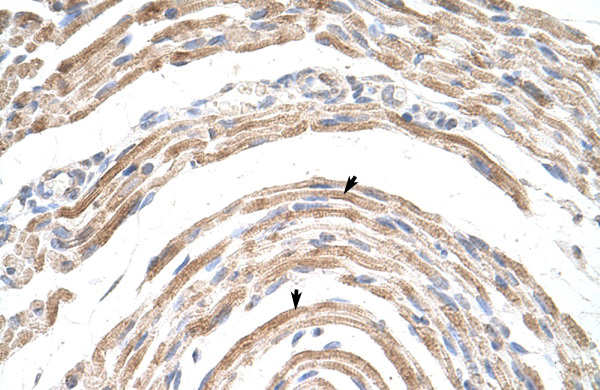 CPSF6 antibody - middle region (ARP40697_T100) in Human Muscle cells using Immunohistochemistry