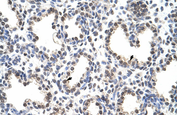 FLJ12529 antibody - C-terminal region (ARP41012_T100) in Human Lung cells using Immunohistochemistry