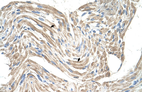 CKMT2 antibody - N-terminal region (ARP41478_T100) in Human Skeletal muscle cells using Immunohistochemistry