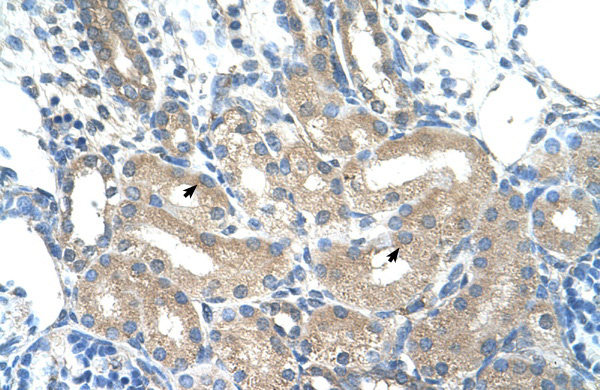 ADH1B antibody - C-terminal region (ARP41787_T100) in Human Kidney cells using Immunohistochemistry