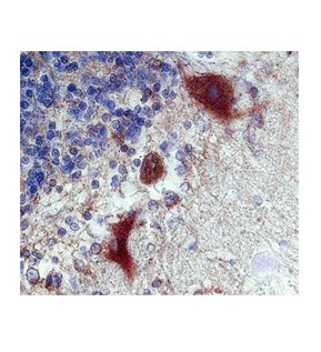 CALB1 antibody - C-terminal region (ARP60104_P050) in human purkinje fibers cells using Immunohistochemistry