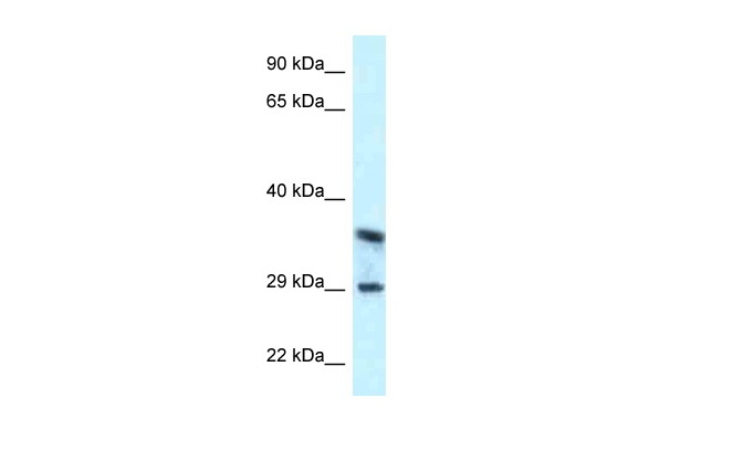 CD63 antibody - C-terminal region (ARP60760_P050) in Human OVCAR3 cells using Western Blot