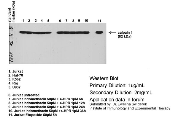 CAPN1 antibody - middle region (ARP60936_P050) in Human cells using Western Blot